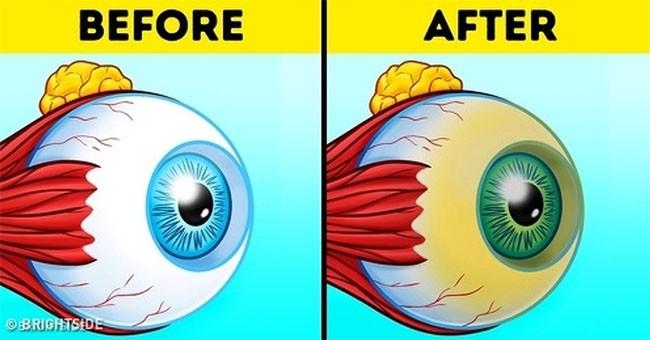 Bạn sẽ không bao giờ phải đeo kính cận nếu từ bỏ 8 thói quen này! ảnh 8