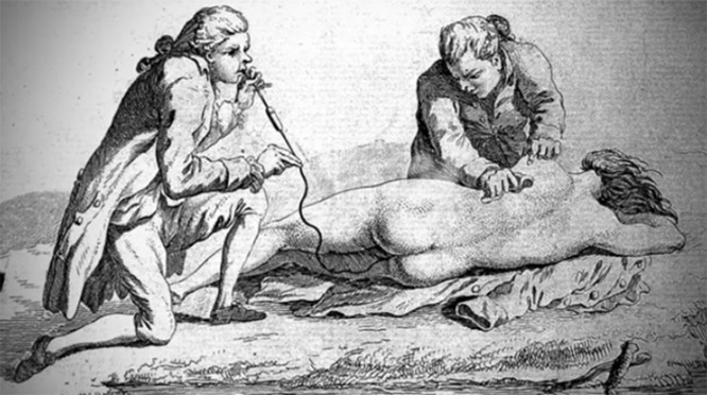 8 phương pháp điều trị y học kỳ lạ chỉ tồn tại trong thời cổ đại ảnh 8