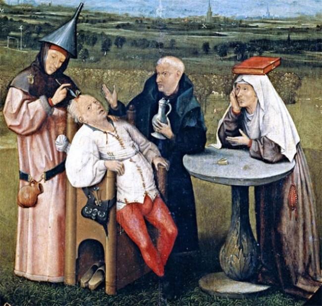 8 phương pháp điều trị y học kỳ lạ chỉ tồn tại trong thời cổ đại ảnh 7