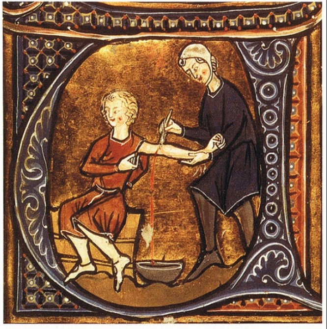 8 phương pháp điều trị y học kỳ lạ chỉ tồn tại trong thời cổ đại ảnh 5