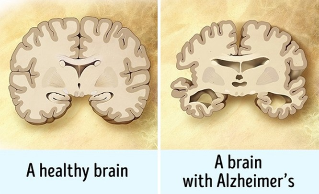 13 thói quen thường ngày vô cùng có hại cho bộ não ảnh 3
