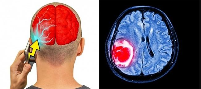 13 thói quen thường ngày vô cùng có hại cho bộ não ảnh 7