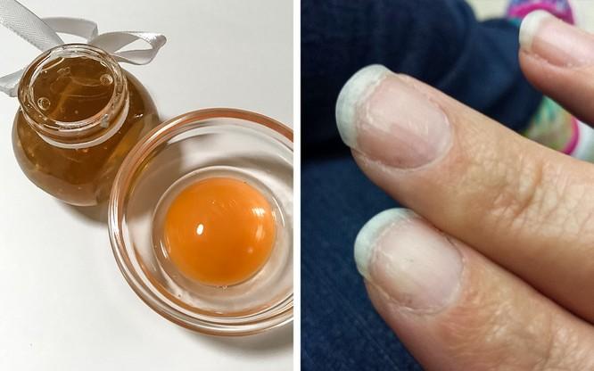 10 liệu pháp tự nhiên đối phó với móng tay yếu, dễ gãy ảnh 7