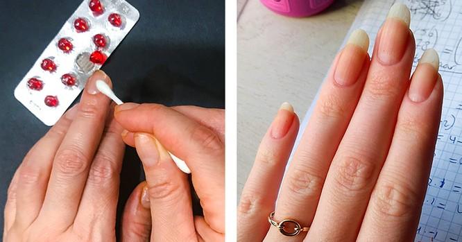 10 liệu pháp tự nhiên đối phó với móng tay yếu, dễ gãy ảnh 1