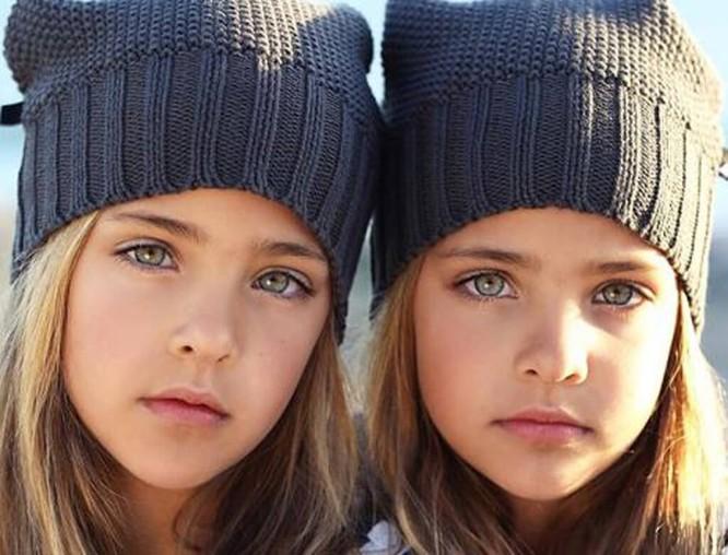 Cặp sinh đôi thiên thần đốn tin cộng đồng mạng hiện giờ ra sao? ảnh 13