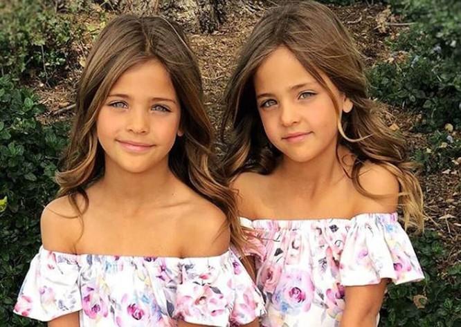 Cặp sinh đôi thiên thần đốn tin cộng đồng mạng hiện giờ ra sao? ảnh 20