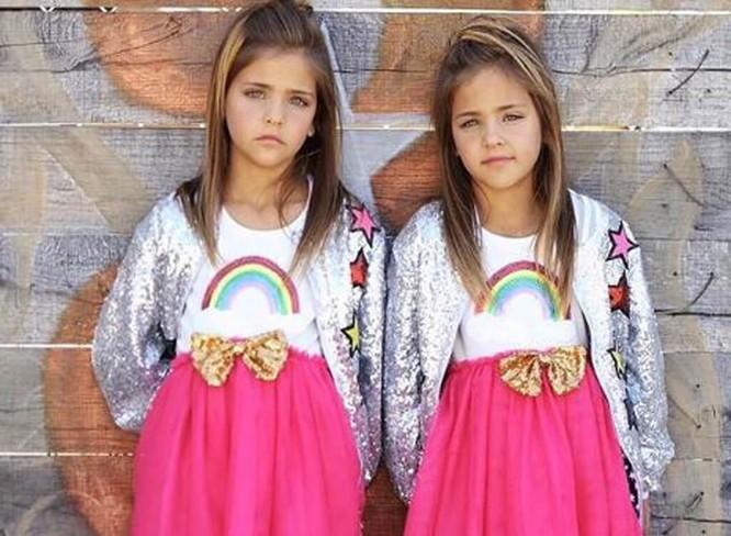 Cặp sinh đôi thiên thần đốn tin cộng đồng mạng hiện giờ ra sao? ảnh 10