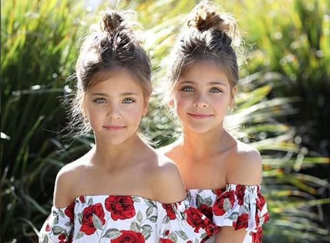 Cặp sinh đôi thiên thần đốn tin cộng đồng mạng hiện giờ ra sao? ảnh 19