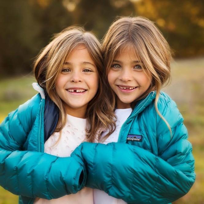 Cặp sinh đôi thiên thần đốn tin cộng đồng mạng hiện giờ ra sao? ảnh 9