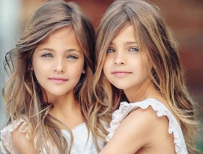 Cặp sinh đôi thiên thần đốn tin cộng đồng mạng hiện giờ ra sao? ảnh 8