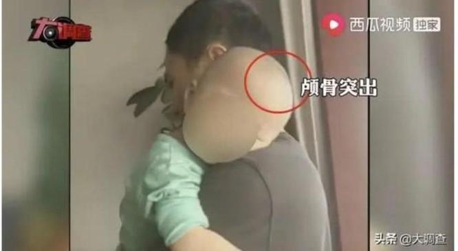 """Trung Quốc: lại xuất hiện """"Trẻ đầu to"""" do sữa rởm gây chấn động dư luận ảnh 1"""