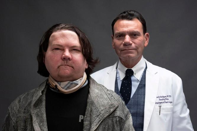 Người được phẫu thuật thay khuôn mặt thành công đầu tiên trên thế giới ảnh 3