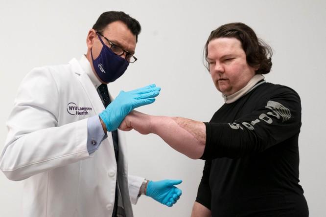 Người được phẫu thuật thay khuôn mặt thành công đầu tiên trên thế giới ảnh 4