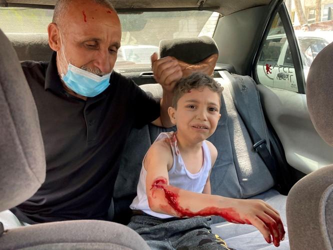 Bùng nổ xung đột dữ dội Israel - Palestine sau vụ đụng độ trong đền thờ Hồi giáo ở Jerusalem ảnh 2
