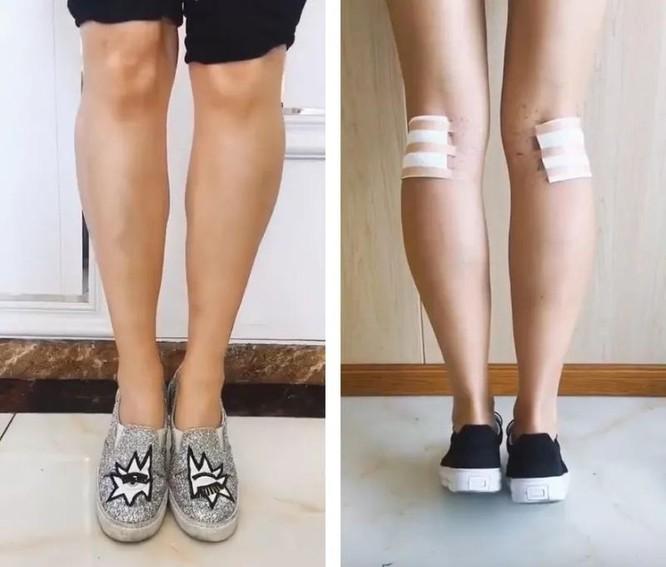 Phong tỏa bắp chân – trào lưu làm đẹp đáng sợ của các thiếu nữ Trung Quốc ảnh 4