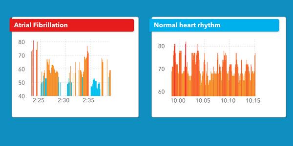 Apple Watch có thể dò ra nhịp tim bất thường chính xác tới 97% ảnh 1