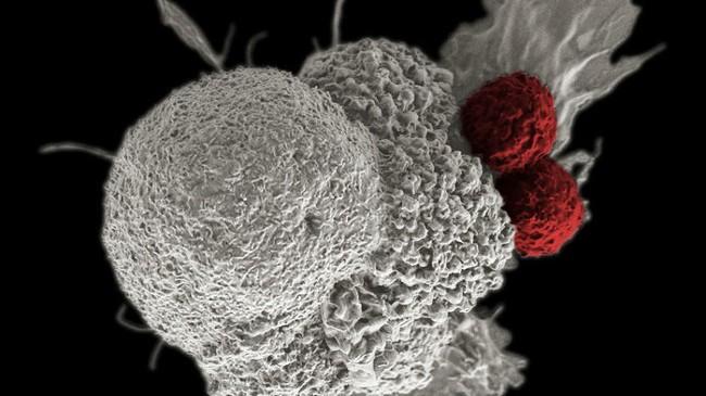 Đột phá: Mỹ thông qua trị liệu gen chữa ung thư máu ảnh 1