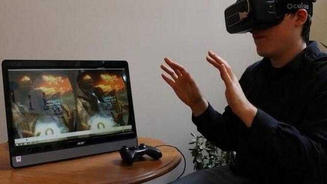 Slovakia: Sử dụng kính thực tế ảo để chữa bệnh về mắt ảnh 3