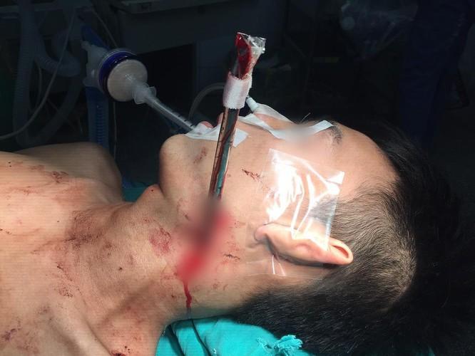 Cứu sống bệnh nhân bị thanh sắt giàn treo đâm vào cổ ảnh 1