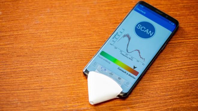 Ứng dụng điện thoại giúp chẩn đoán bệnh viêm tai giữa tại nhà ảnh 1