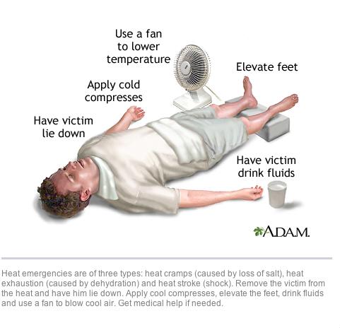Cấp cứu người bị sốc nhiệt: Cho nạn nhân nằm, hạ nhiệt và uống nước