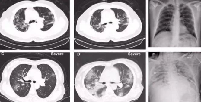Hình chụp CT phổi của bệnh nhân nhiễm coronavirus.