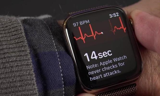Apple Watch tại Việt Nam sẽ đo được điện tâm đồ ảnh 1