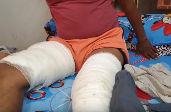 Smartphone phát nổ trong túi quần khiến chủ nhân bị thương nặng ảnh 2