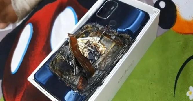 Smartphone phát nổ trong túi quần khiến chủ nhân bị thương nặng ảnh 1