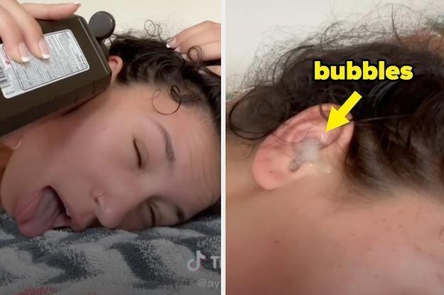 Trào lưu đổ oxy già vào tai tiềm ẩn nguy hiểm trên TikTok ảnh 1