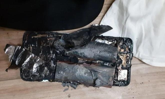 Mới mua hơn 2 tuần, smartphone bất ngờ phát nổ khiến chủ nhân bị thương ảnh 1
