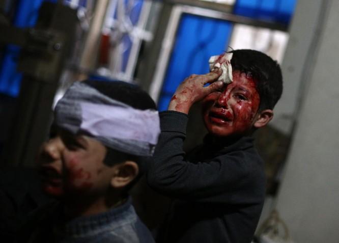 Chùm ảnh trẻ em Trung Đông trong chiến tranh ảnh 17
