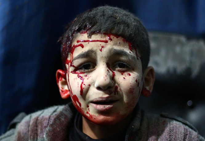 Chùm ảnh trẻ em Trung Đông trong chiến tranh ảnh 22