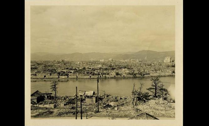 Chùm ảnh độc thảm họa hạt nhân Hirosima 70 năm trước ảnh 14