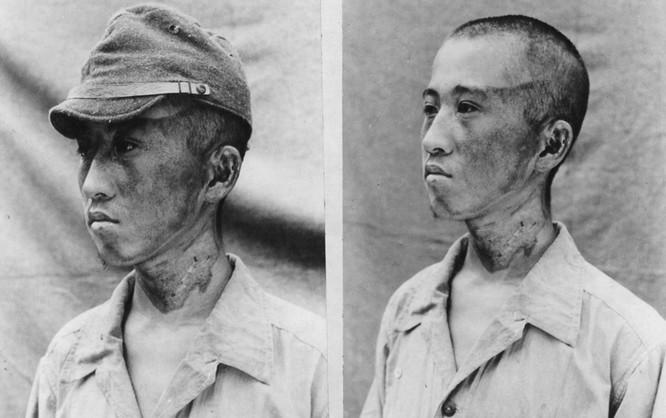 Chùm ảnh độc thảm họa hạt nhân Hirosima 70 năm trước ảnh 20