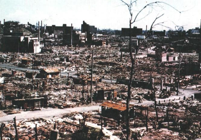 Chùm ảnh độc thảm họa hạt nhân Hirosima 70 năm trước ảnh 25
