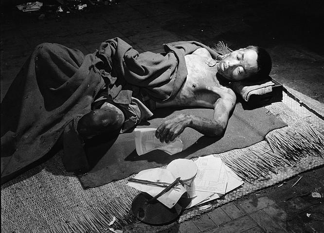Chùm ảnh độc thảm họa hạt nhân Hirosima 70 năm trước ảnh 27