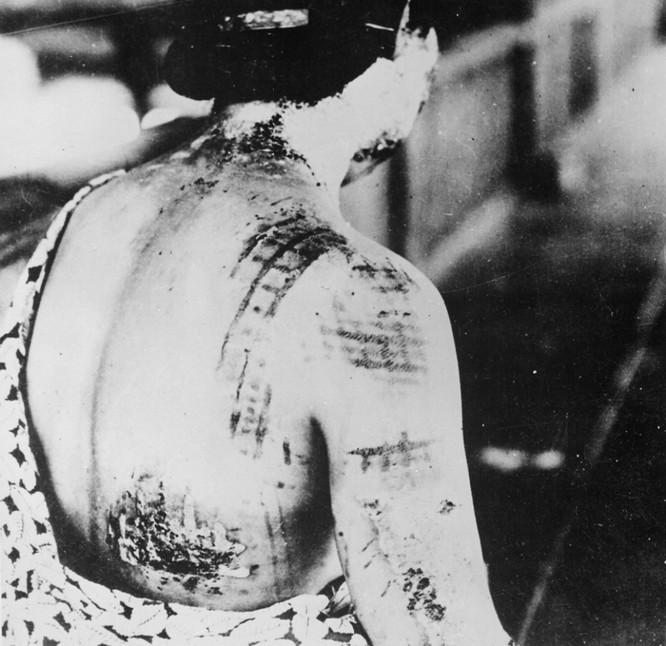 Chùm ảnh độc thảm họa hạt nhân Hirosima 70 năm trước ảnh 28