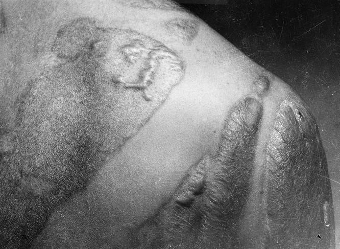 Chùm ảnh độc thảm họa hạt nhân Hirosima 70 năm trước ảnh 30