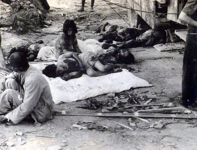 Chùm ảnh độc thảm họa hạt nhân Hirosima 70 năm trước ảnh 37