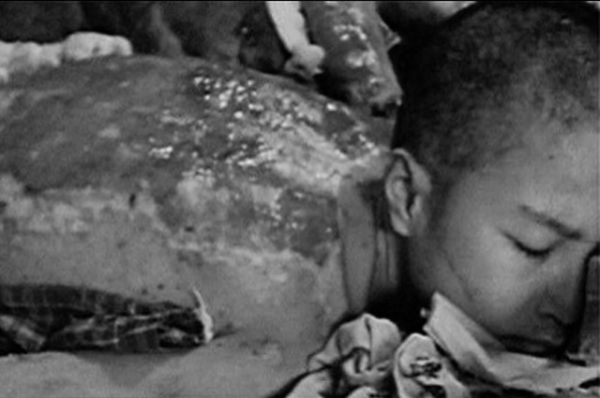 Chùm ảnh độc thảm họa hạt nhân Hirosima 70 năm trước ảnh 38