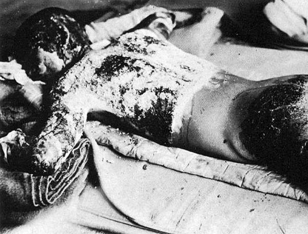 Chùm ảnh độc thảm họa hạt nhân Hirosima 70 năm trước ảnh 39