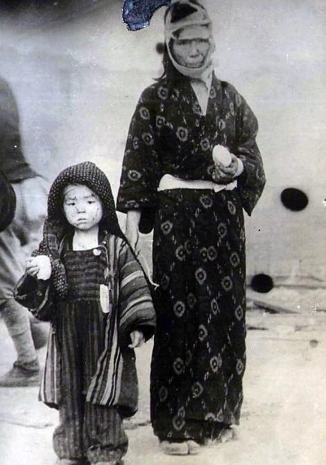 Chùm ảnh độc thảm họa hạt nhân Hirosima 70 năm trước ảnh 42