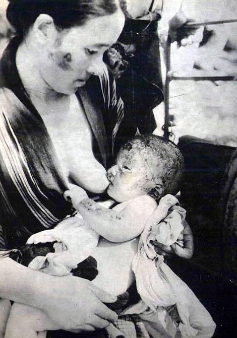 Chùm ảnh độc thảm họa hạt nhân Hirosima 70 năm trước ảnh 47