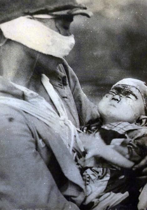 Chùm ảnh độc thảm họa hạt nhân Hirosima 70 năm trước ảnh 48
