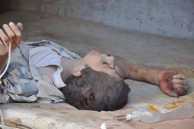 Chùm ảnh thảm họa nhân đạo trẻ em ở địa ngục Syria ảnh 5