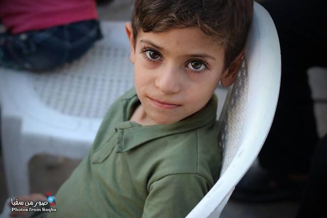 Chùm ảnh thảm họa nhân đạo trẻ em ở địa ngục Syria ảnh 6