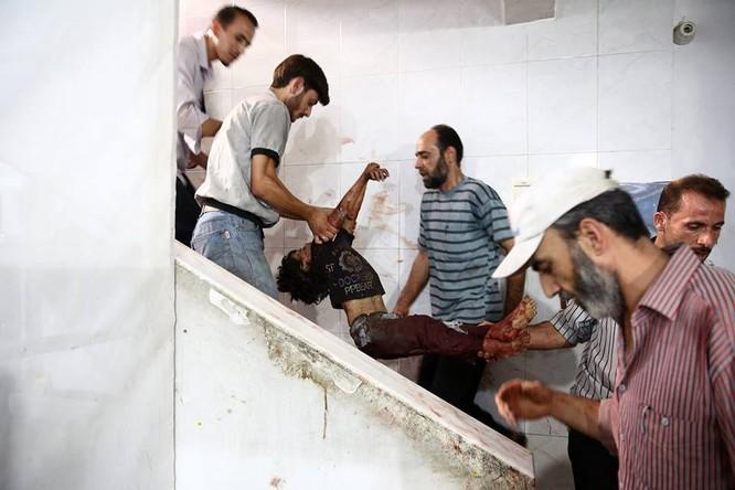 Chùm ảnh thảm họa nhân đạo trẻ em ở địa ngục Syria ảnh 9