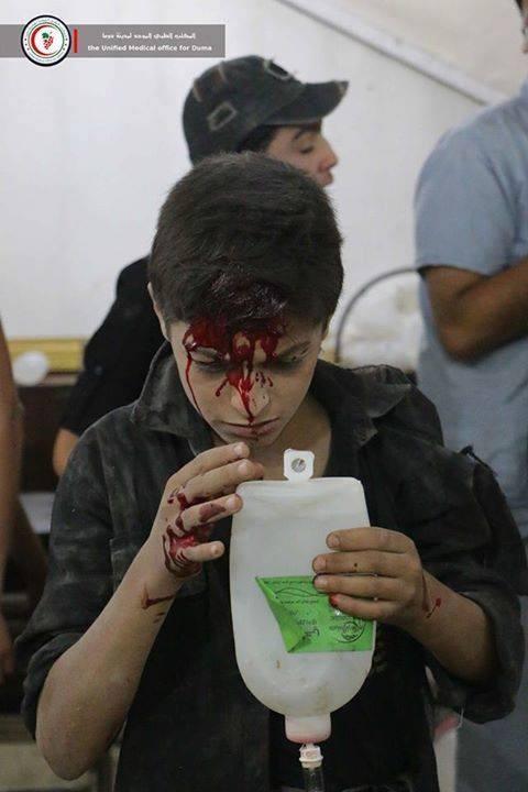 Chùm ảnh thảm họa nhân đạo trẻ em ở địa ngục Syria ảnh 10
