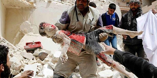 Chùm ảnh thảm họa nhân đạo trẻ em ở địa ngục Syria ảnh 17